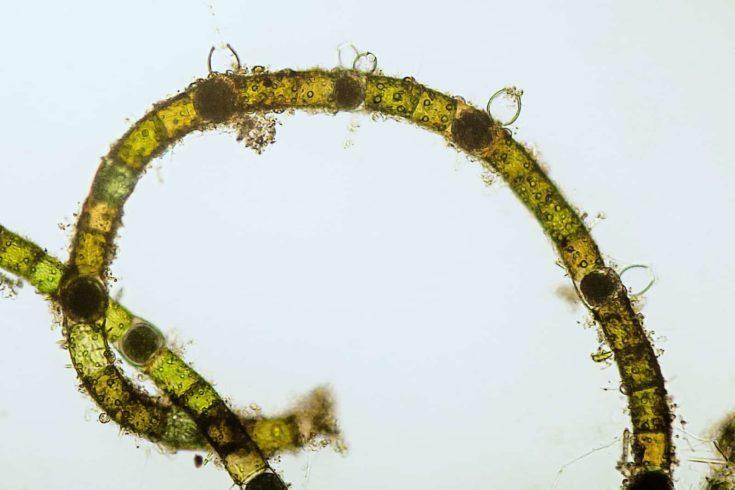 micrograph of Oedogonium species algae filament with oogonia