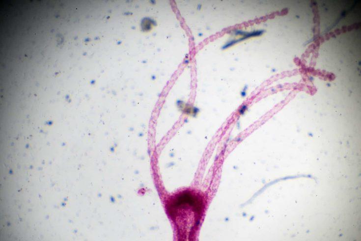 Hydra under light microscopy