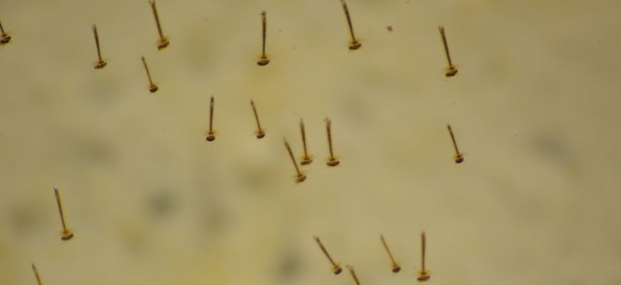 Mosquito larvae in blurry background